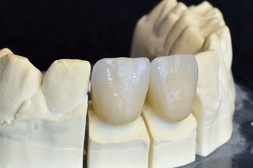 Durham Ceramic Crowns