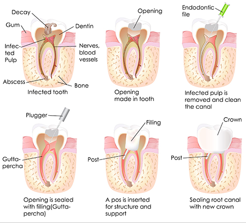 Durham Root Canal